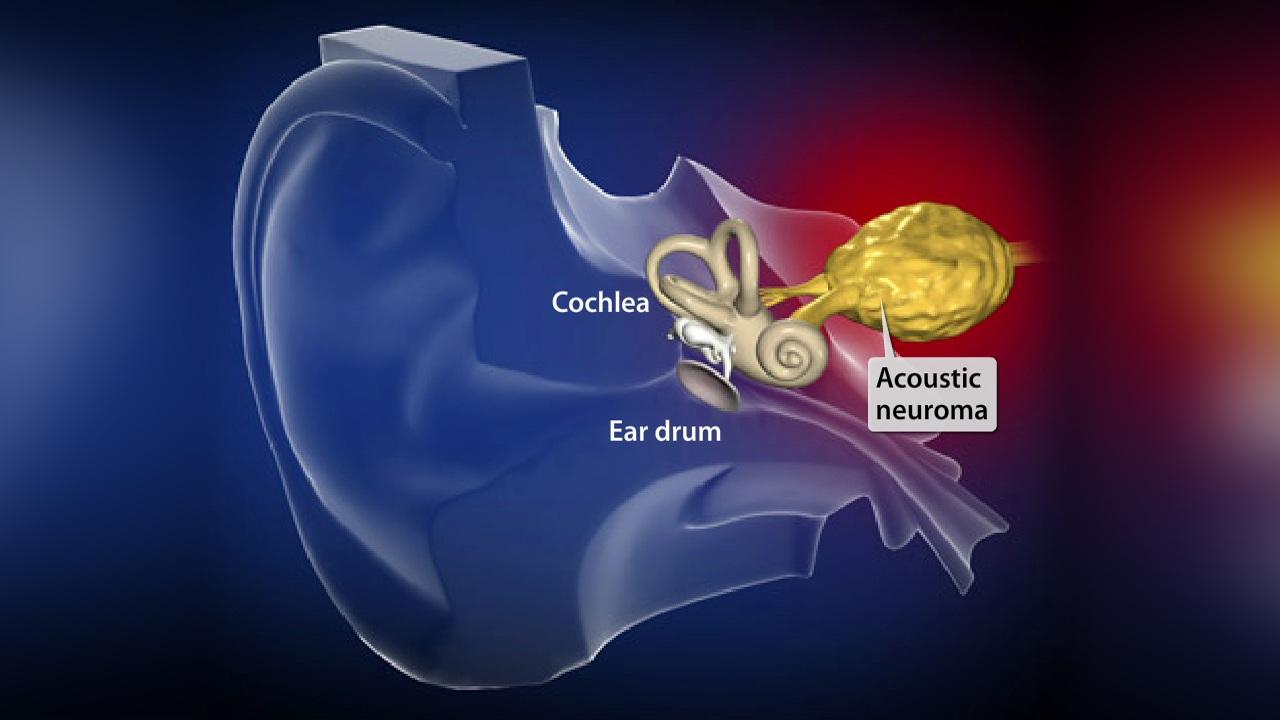 Acoustic Neuroma Surgery in New Jersey | Neurosurgeon | Princeton NJ نوروم آکوستیک - تومور عصب شنوایی