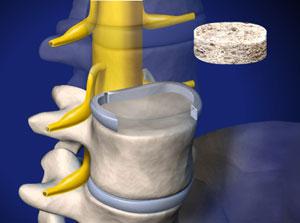 ALIF: Anterior Lumbar Interbody Fusion (with bone graft and pedicle screws)