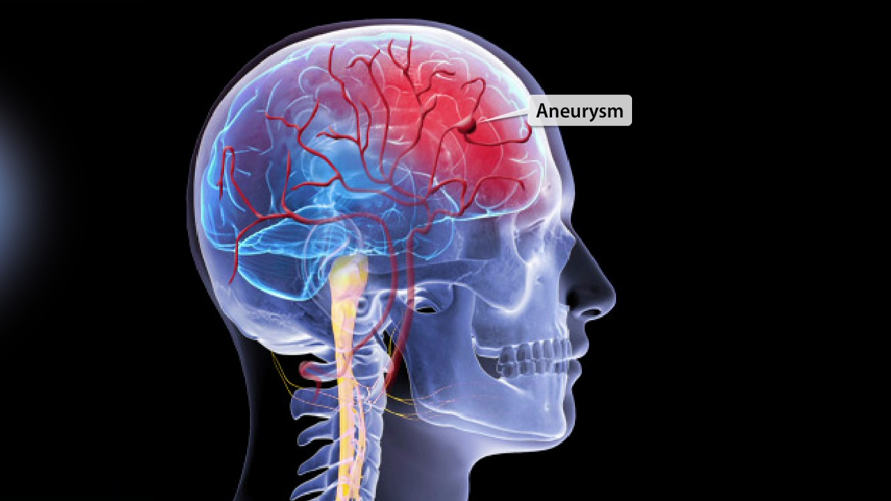 Coil Embolization For Brain Aneurysm Methodist Health System