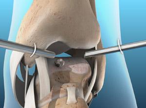 Arthroscopy of the Ankle