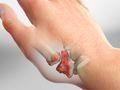 Basal Joint Osteoarthritis