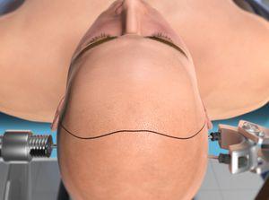 Bifrontal Craniotomy for Tumor