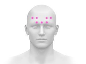 BOTOX® Injections for Chronic Migraine