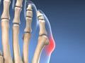 Bunionette Deformity Correction (Overview)