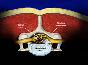 Micro Endoscopic Posterior Cervical Discectomy