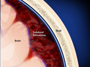 Craniotomy for Subdural Haematoma