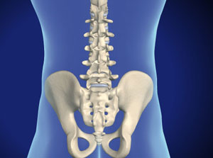 Facet Fixation (US Spine™)