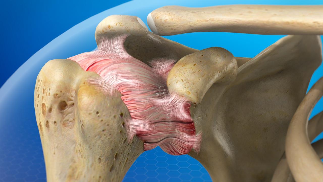 Frozen Shoulder | Manhattan Orthopedic Care
