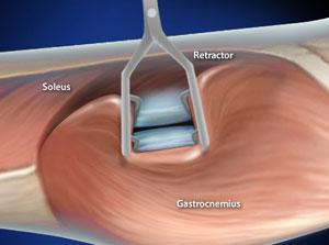 Gastrocnemius Recession (Intramuscular Approach)