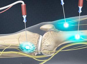 Genicular Nerve Ablation