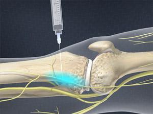 Genicular Nerve Block (G Block)