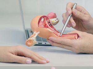 Gynecologic Laparoscopy