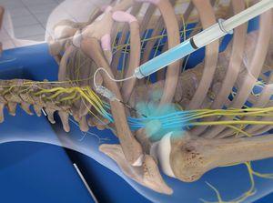 Brachial Plexus Block (Infraclavicular Approach, Ultrasound-guided)