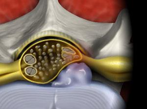 Intralaminar Lumbar Microendoscopic Discectomy
