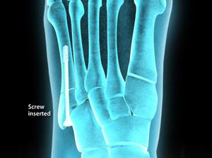 Jones Fracture Fixation (Intramedullary Screw)