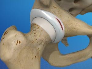 Labral Tear of the Hip (Acetabular Labrum Tear)