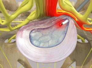 Percutaneous Laser Discoplasty