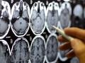 Metastatic Brain Tumor