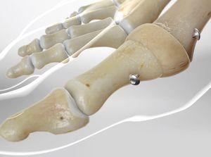 First Metatarsal-phalangeal Joint (MTP) Arthrodesis