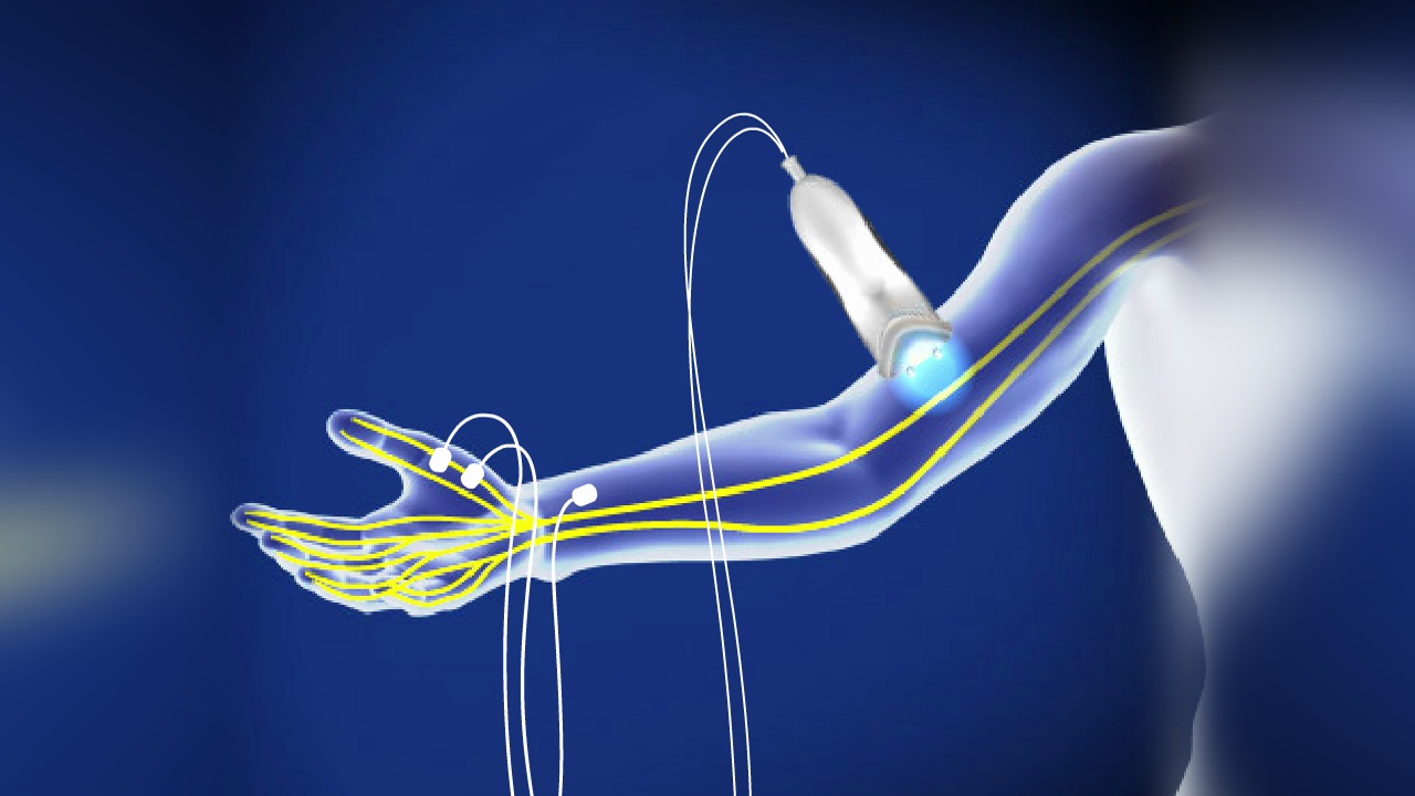 Nerve Conduction Study (NCS) - Electromyogram (EMG) | RestorePDX