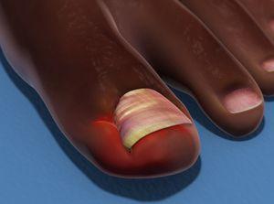 Partial Nail Removal (Matrixectomy)