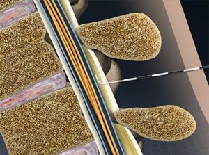 Patient-Controlled Epidural Analgesia (PCEA)