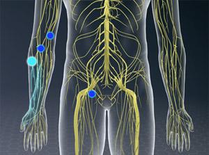 Anesthesia (Peripheral Nerve Block)