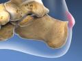Haglund's Deformity Surgery (Resection Method)