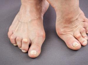 Rheumatoid Arthritis of the Foot and Ankle
