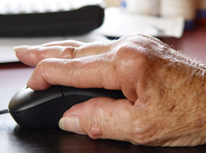 Rheumatoid Arthritis (RA) of the Hand