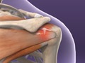 AC Joint Injury Treatment | Biceps Injury Treatment | Herrin, IL | Carbondale, IL | Harrisburg, IL | Paducah, KY