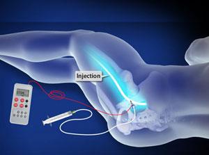 Sciatic Nerve Block (Posterior Approach, Electric Stimulation)