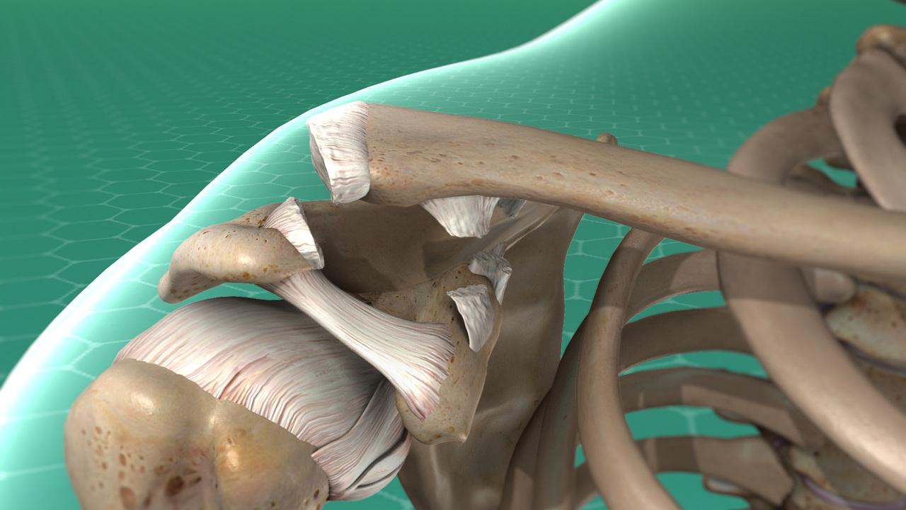 Shoulder separation - causes & treatment   Manhattan Orthopedic Care