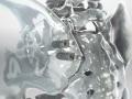 Sacroiliac Joint Fusion (Rialto™ SI Fusion System)