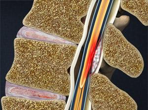 Spinal Epidural Abscess