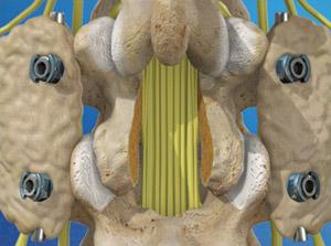 Spinal Fusion (Lumbar)