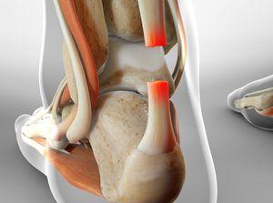 Surgery for Achilles Tendon Rupture