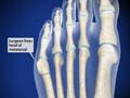 Bunionette Deformity Correction (Distal Fifth Metatarsal Osteotomy)