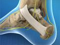 Tarsal Tunnel Syndrome (Posterior Tibial Neuralgia)