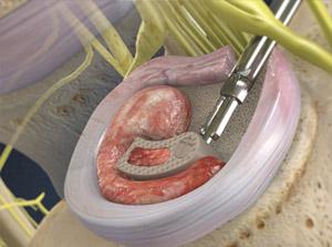 TLIF: Transforaminal Lumbar Interbody Fusion