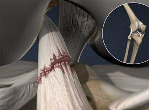 Torn Anterior Cruciate Ligament (ACL)
