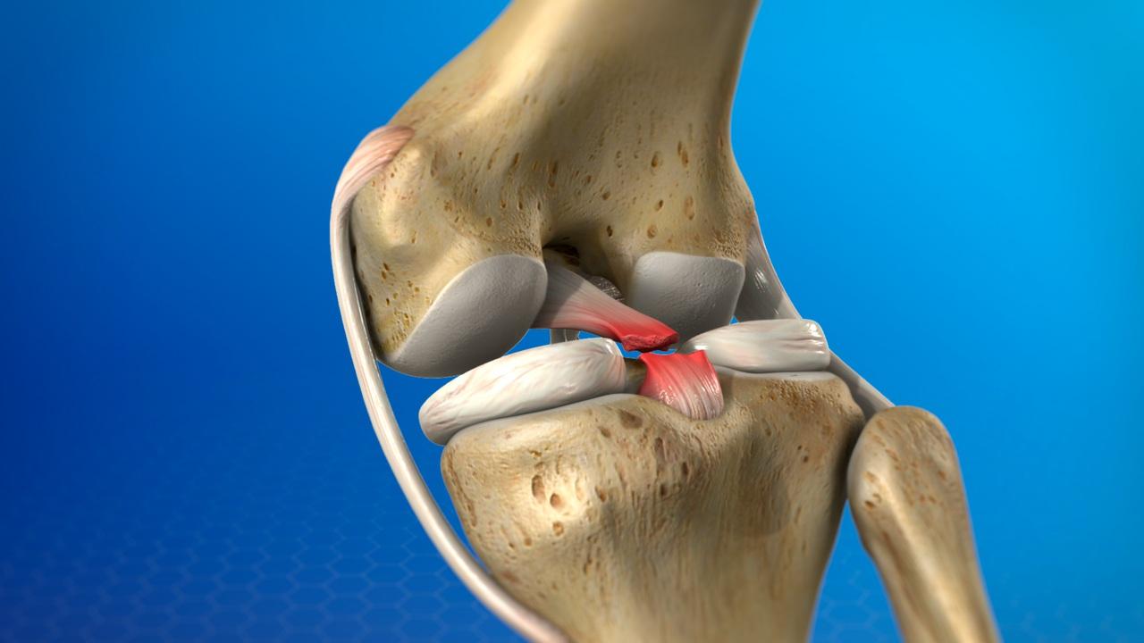 balsam articular ligamentar)