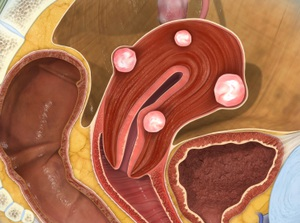 Uterine Fibroids (Uterine Myomas)