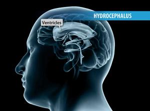 Ventriculoperitoneal Shunt for Hydrocephalus