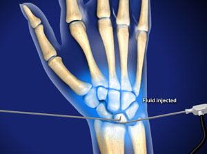 Arthroscopic 171 Orthopaedic Care Specialists
