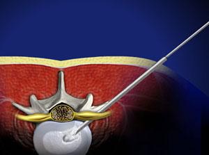 YESS Selective Endoscopic Discectomy™